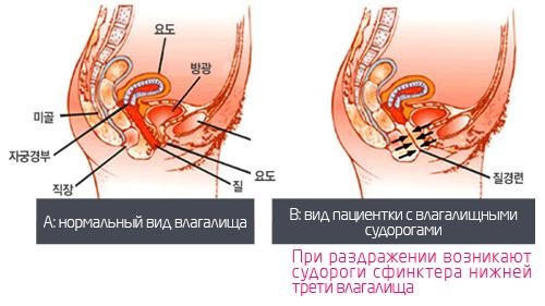 yaichko-umenshilos-sperma-zheltovataya
